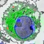 """CLEM-Aufnahme (Confocal Laser and Electron Microscopy) einer dendritischen Zelle: Mit dieser speziellen Mikroskopietechnik konnten die Forscher Sec61 (kleine schwarze Pünktchen) in den rotgefärbte Endosomen (""""Tüten"""") sichtbar machen. (c) AG Burgdorf"""